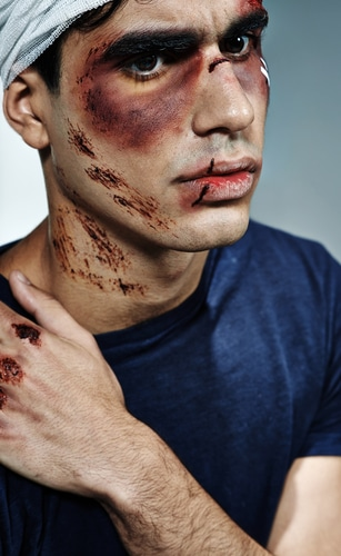 Three Facial Injuries Most Often Caused By Car Accidents Call Lee Free